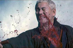 Blood spraying