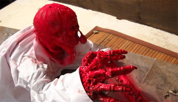Flesh Eating Disease P...